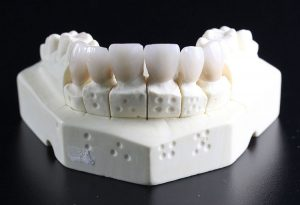 Dental bridge model