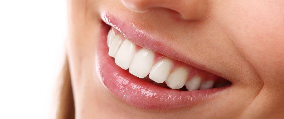 zoom teeth whitening perth