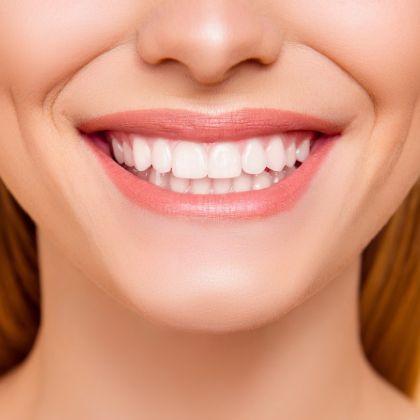 White bright smile